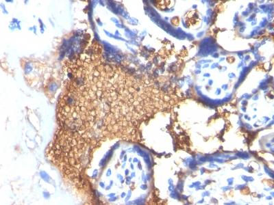 Monoclonal Antibody to Glycophorin A / CD235a (Erythrocyte Marker)(Clone : GYPA/280)