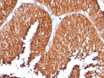 Monoclonal Antibody to HSP60 (Heat Shock Protein 60) (Mitochondrial Marker)(Clone : SPM253)