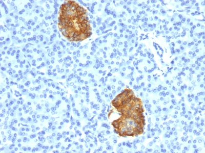 Monoclonal Antibody to Insulin / IRDN (beta-Cell & Insulinoma Marker)(E2-E3 + 2D11-H5; same as INS04 + INS05)