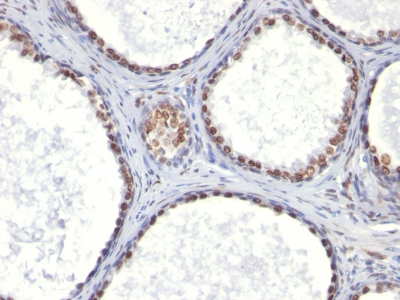 Monoclonal Antibody to Androgen Receptor (Marker of Androgen Dependence)(Clone : AR441)