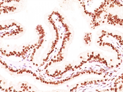 Monoclonal Antibody to Androgen Receptor (Marker of Androgen Dependence)(AR441 + DHTR/882)
