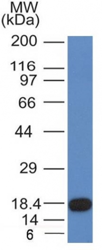 Monoclonal Antibody to CD117 / c-Kit (Marker for Gastrointestinal Stromal Tumors)(Clone : KIT/982)