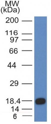 Monoclonal Antibody to CD117 / c-Kit (Marker for Gastrointestinal Stromal Tumors)(Clone : KIT/983)