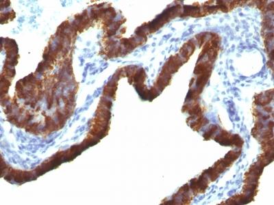 Monoclonal Antibody to Cytokeratin 7 (KRT7) (Glandular and Transitional Epithelial Marker)(KRT7/760 + OV-TL12