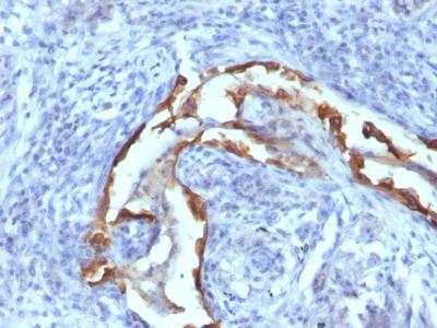 Monoclonal Antibody to Cytokeratin 8 (KRT8)(Clone : SPM538)
