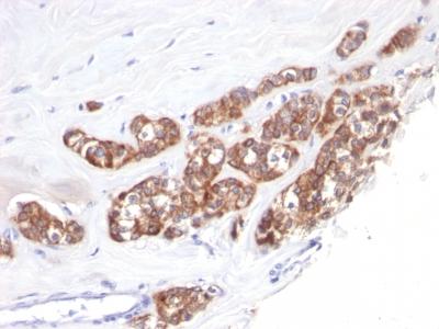 Monoclonal Antibody to Cytokeratin 18 (KRT18)(Clone : SPM510)