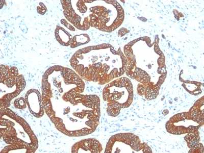 Monoclonal Antibody to Cytokeratin 18 (KRT18)(Clone : DE-K18)