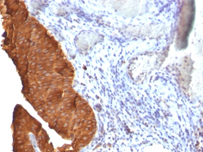 Monoclonal Antibody to Cytokeratin 19 (KRT19) (Pancreatic Stem Cell Marker)(Clone : SPM561)