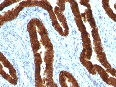 Monoclonal Antibody to Cytokeratin 19 (KRT19) (Pancreatic Stem Cell Marker)(Clone : KRT19/800)