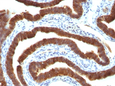 Monoclonal Antibody to Cytokeratin 19 (KRT19) (Pancreatic Stem Cell Marker)(Clone : Ks19.1)