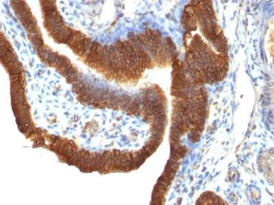 Monoclonal Antibody to Ep-CAM / CD326 (Epithelial Marker)(Clone : SPM491)