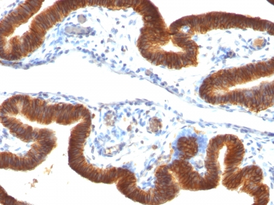 Monoclonal Antibody to Ep-CAM / CD326 (Epithelial Marker)(Clone : SPM134)