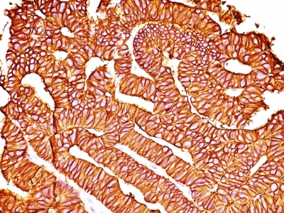 Monoclonal Antibody to Ep-CAM / CD326 (Epithelial Marker)(Clone : SPM528)
