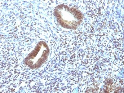 Monoclonal Antibody to MAP3K1 (Mitogen-Activated Protein Kinase Kinase Kinase 1)(Clone : 2F6)