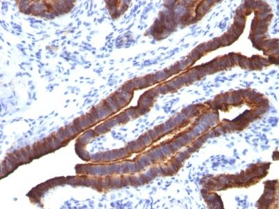 Monoclonal Antibody to MUC1 / EMA / CD227 (Epithelial Marker)(Clone : MUC1/520)