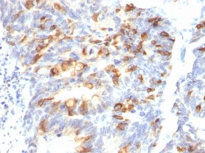 Monoclonal Antibody to MUC2 (Mucin 2)(Clone : MLP/842)