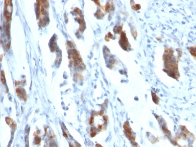 Monoclonal Antibody to MUC5AC (Mucin 5AC / Gastric Mucin)(Clone : 58M1)