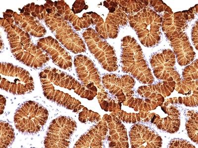 Monoclonal Antibody to MUC5AC (Mucin 5AC / Gastric Mucin)(MUC5AC/917 + 45M1)