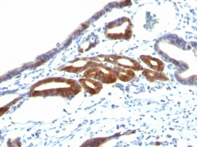 Monoclonal Antibody to MUC6 (Mucin 6 / Gastric Mucin)(Clone : SPM598)