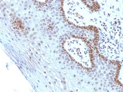Monoclonal Antibody to c-Myc Oncoprotein(Clone : SPM237)