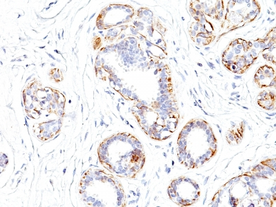 Monoclonal Antibody to Smooth Muscle Myosin Heavy Chain (SM-MHC) (Leiomyosarcoma & Myoepithelial Cell Marker)
