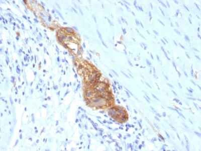 Monoclonal Antibody to CD56 / NCAM1 / NKH1 (Neuronal Cell Marker)(Clone : SPM489)