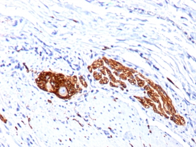 Monoclonal Antibody to CD56 / NCAM1 / NKH1 (Neuronal Cell Marker)(123C3.D5 + 123A8)