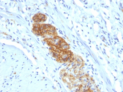 Monoclonal Antibody to CD56 / NCAM1 / NKH1 (Neuronal Cell Marker)(Clone : NCAM1/784)