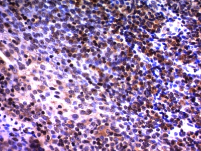 Monoclonal Antibody to Nuclear Mitotic Apparatus Protein (NuMA)(Clone : A73-B/D12)