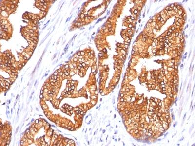 Monoclonal Antibody to Ornithine Decarboxylase-1 (ODC-1)(Clone : SPM565)