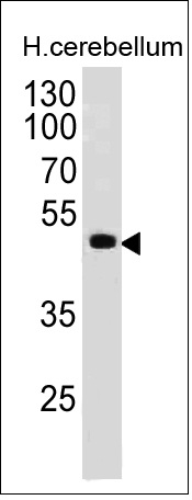 Monoclonal Antibody to PAX6 (Stem Cell Marker)(Clone : PAX6/498)