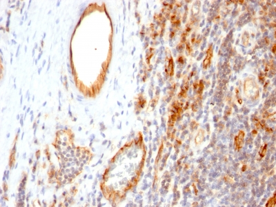 Monoclonal Antibody to CD31 / PECAM-1 (Endothelial Cell Marker)(Clone : 1A10)