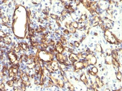 Monoclonal Antibody to Podocalyxin (PODXL) (Hematopoietic Stem Cell Marker)(Clone : 2A4)