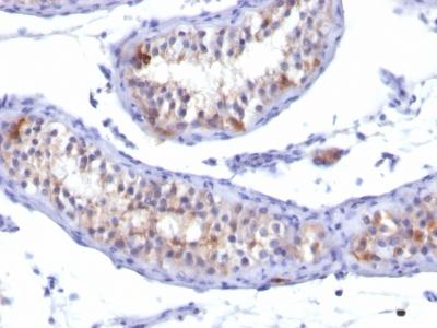 Monoclonal Antibody to Prolactin Receptor (hPRL-Receptor)(Clone : PRLR742)