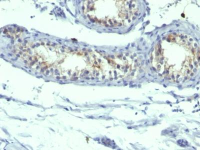 Monoclonal Antibody to Prolactin Receptor (hPRL-Receptor)(B6.2 + PRLR742)