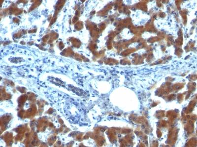 Monoclonal Antibody to Retinol Binding Protein-1 (RBP1)(Clone : RBP/872)