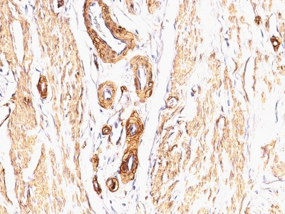 Monoclonal Antibody to Actin, Smooth Muscle (Leiomyosarcoma Marker)(Clone : SPM332)