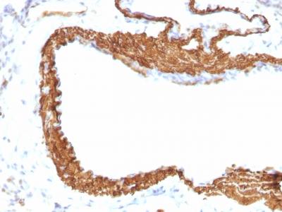 Monoclonal Antibody to Actin, Smooth Muscle (Leiomyosarcoma Marker)(1A4 + ACTA2/791)
