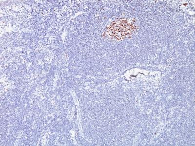 Monoclonal Antibody to Bcl-6 (Follicular Lymphoma Marker)(Clone : SPM602)(Discontinued)