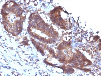 Monoclonal Antibody to Transgelin (SM22-alpha)(Clone : TAGLN/247)