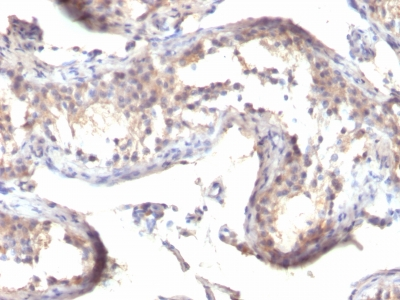 Monoclonal Antibody to TGF-alpha (Transforming Growth Factor alpha)(Clone : MF9)