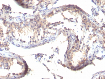 Monoclonal Antibody to TGF-alpha (Transforming Growth Factor alpha)(Clone : TGFA/1119)