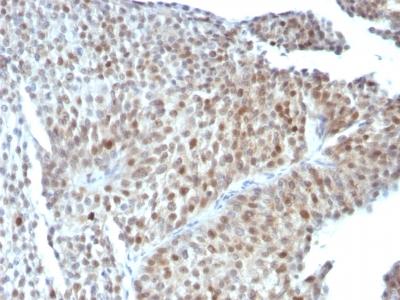 Monoclonal Antibody to p53 Tumor Suppressor Protein(Clone : SPM589)