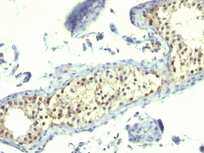 Monoclonal Antibody to Thymidylate Synthase (5-FU Resistance Marker)(Clone : SPM453)