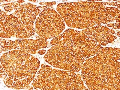 Monoclonal Antibody to Tyrosinase (Melanoma Marker)(Clone : T311)