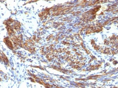 Monoclonal Antibody to Caldesmon, HMW (h-Caldesmon) (Smooth Muscle Marker)(Clone : CALD1/820)