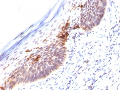 Monoclonal Antibody to CD1a (Mature Langerhans Cells Marker)(Clone : SPM120)