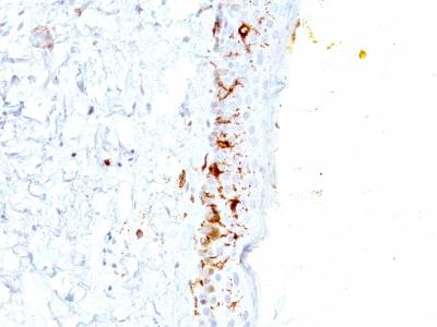 Monoclonal Antibody to CD1a / HTA1 (Mature Langerhans Cells Marker)(Clone : C1A/711)