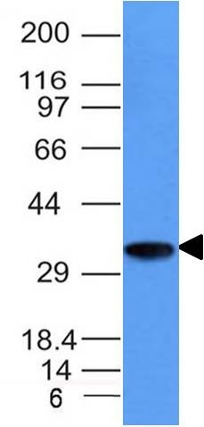 Monoclonal Antibody to CD74 (B-Cell Marker)(Clone : CLIP/1133)