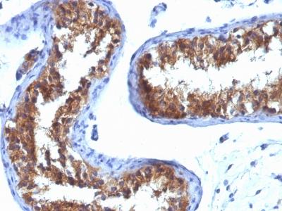 Monoclonal Antibody to Major Vault Protein (MVP)(Clone : 1032)